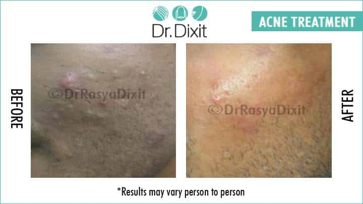 Don't live with Acne Scars, get them treated