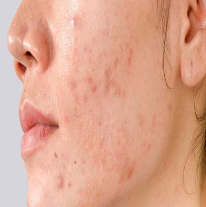 Acne Scars Reduction