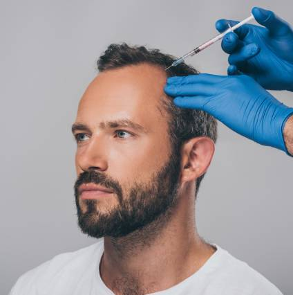 PRP Therapy for Hair Loss Men