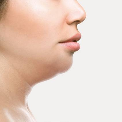 Double Chin Reduction in Bangalore
