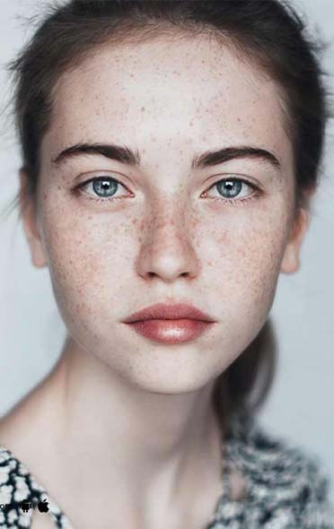 Facial pigmentation and Melasma